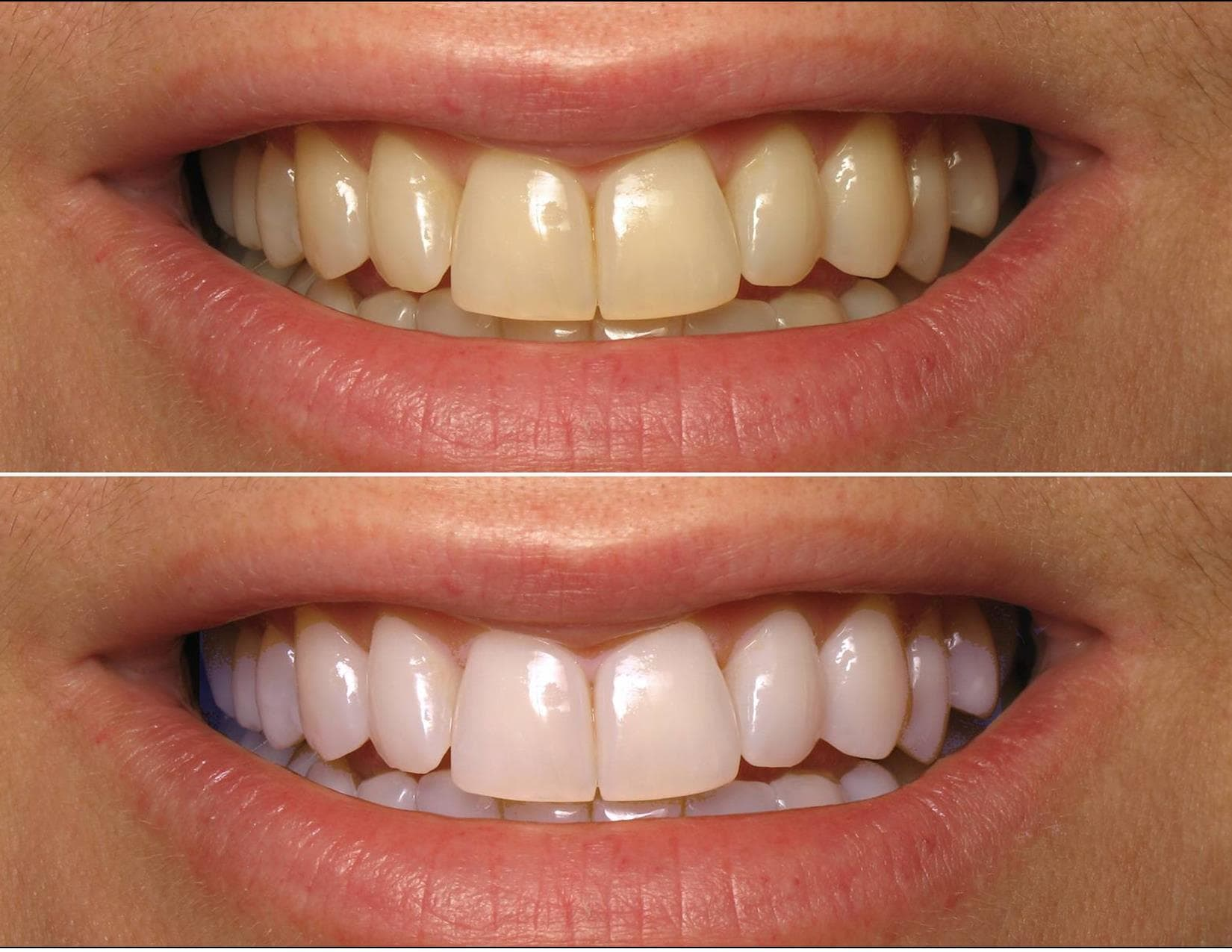 before and after whitening photo